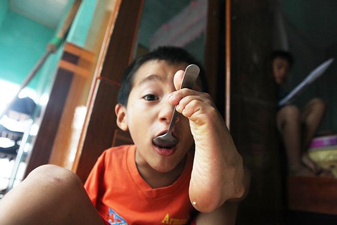 Ảnh - Clip: Đôi chân diệu kì của cậu bé 7 tuổi không tay - ảnh 12