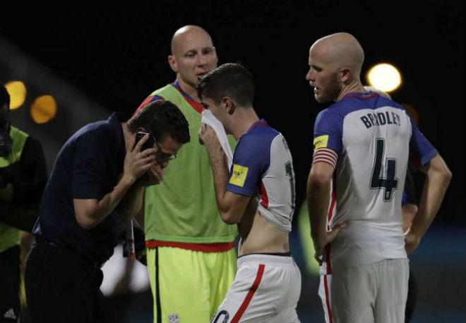 """""""Vết nhơ"""" World Cup: Falcao thừa nhận gạ """"dàn xếp"""", Mỹ tức tưởi bàn thắng ma - 9"""