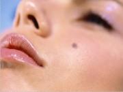 Bỗng xuất hiện nốt ruồi trên da, hãy nghĩ ngay đến bệnh ung thư nguy hiểm này