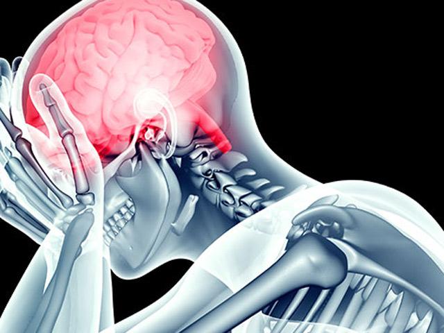 Tai biến mạch máu não: Tin vui gì khiến hàng ngàn bệnh nhân háo hức mong chờ!