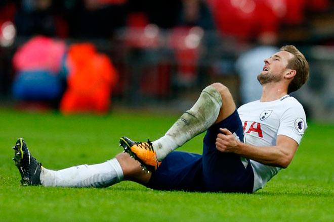 """Đại chiến MU – Tottenham: Harry Kane chấn thương, Mourinho có kế """"độc"""""""