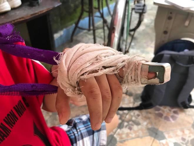 """Học sinh mầm non gãy ngón tay sau khi bị cô giáo """"gõ"""" - 1"""
