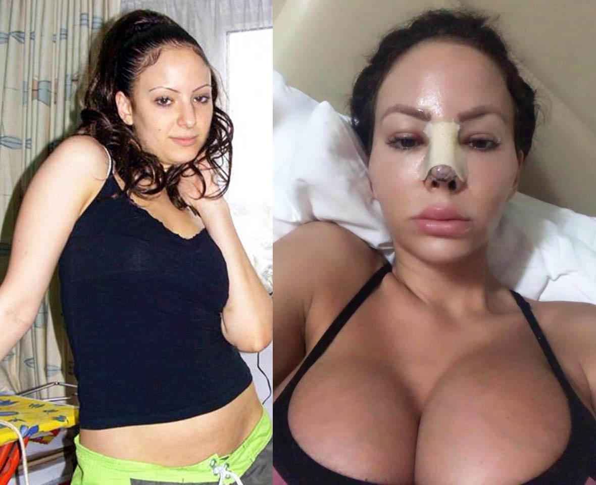 Cô gái Anh biến dạng mặt, sưng vù môi sau khi chi 6,5 tỷ đồng cho dao kéo - 1