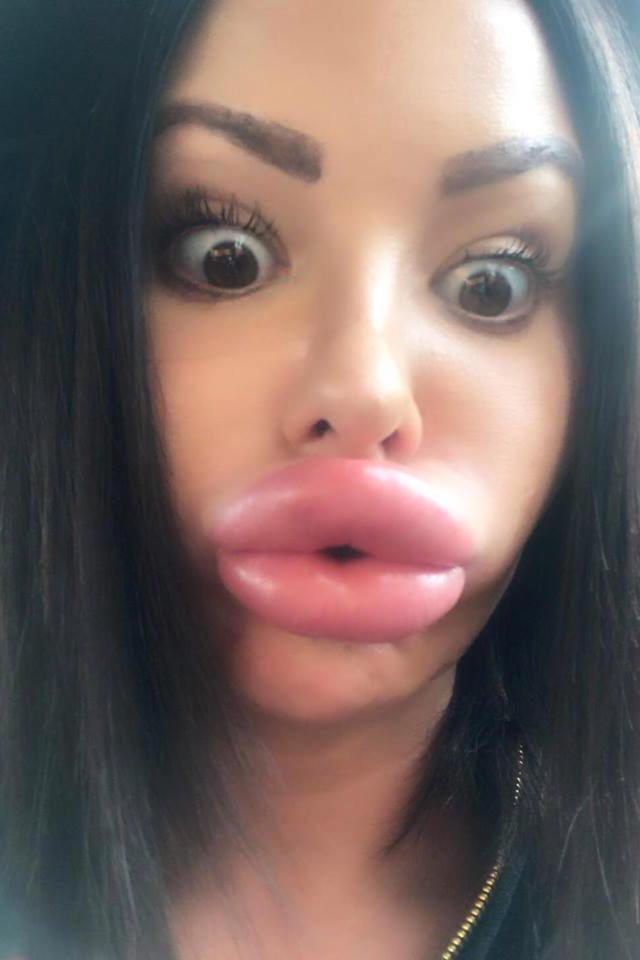Cô gái Anh biến dạng mặt, sưng vù môi sau khi chi 6,5 tỷ đồng cho dao kéo - 4