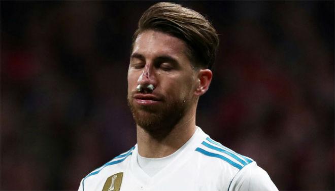 Tin HOT bóng đá tối 20/11: Barcelona tranh Ozil với MU 3