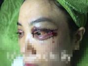 Cư dân mạng sốc nặng trước ảnh cắt mí hỏng của cô gái Việt