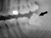 Thai phụ bị đình chỉ thai kỳ vi răng khôn mọc lêch gây áp xe nặng