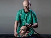 Ghép đầu người: Bệnh nhân tỉnh lại sẽ phát điên?