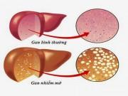 Gan nhiễm mỡ do chế độ ăn uống không lành mạnh, diễn tiến nặng có thể gây xơ gan, ung thư gan