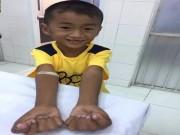 Cậu bé tay dính ngón kỳ dị sắp chạm ước mơ đến lớp