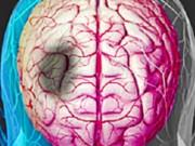 Tin tức sức khỏe - Tai biến mạch máu não: Hàng ngàn bệnh nhân bất ngờ hồi phục nhờ mẹo nhỏ!