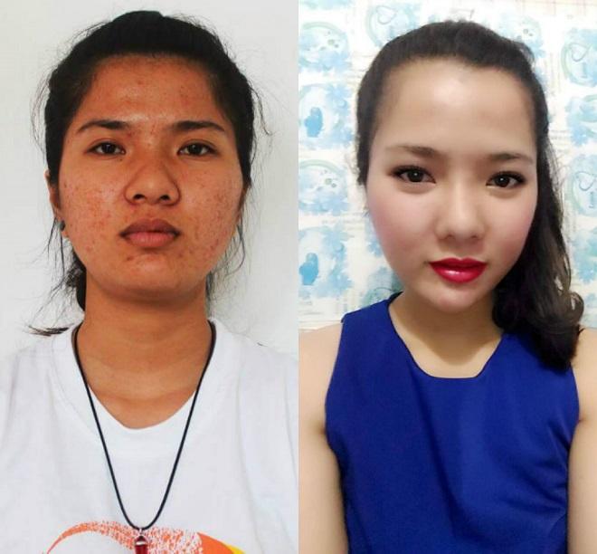 """Cô gái Quảng Trị sốc vì khuôn mặt """"xinh như hoa"""" của chính mình sau thẩm mỹ"""