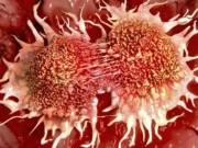 Muốn tế bào ung thư tuyệt đường sinh sôi nên ăn nhiều 30 thực phẩm này