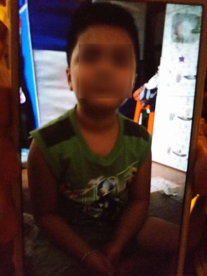 Bé trai 10 tuổi chằng chịt sẹo trên người: Bố đẻ thừa nhận đánh con - 3