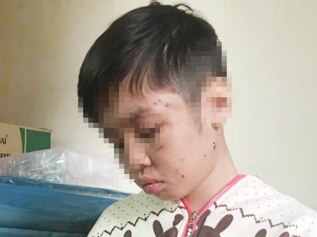 Bé trai bị đánh rạn xương sườn: Mẹ kế khai lý do hành hạ con chồng