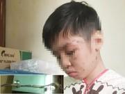 Nóng 24h qua: Bố đẻ chế dụng cụ hành hạ con trai gây phẫn nộ