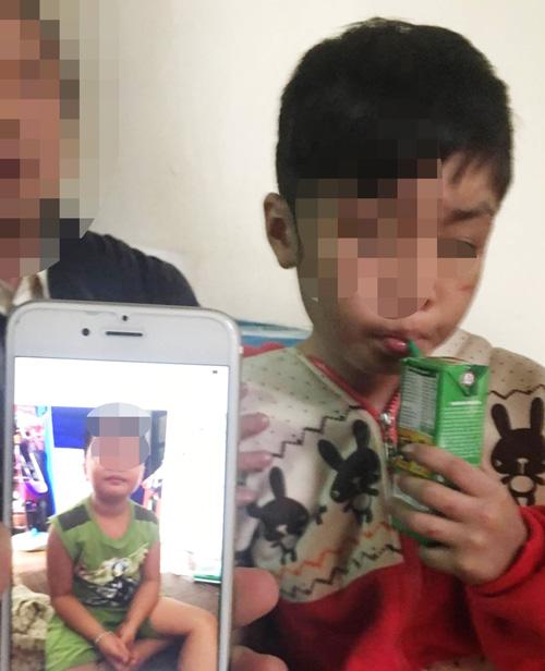 Vụ bé trai 10 tuổi bị bạo hành ở HN: