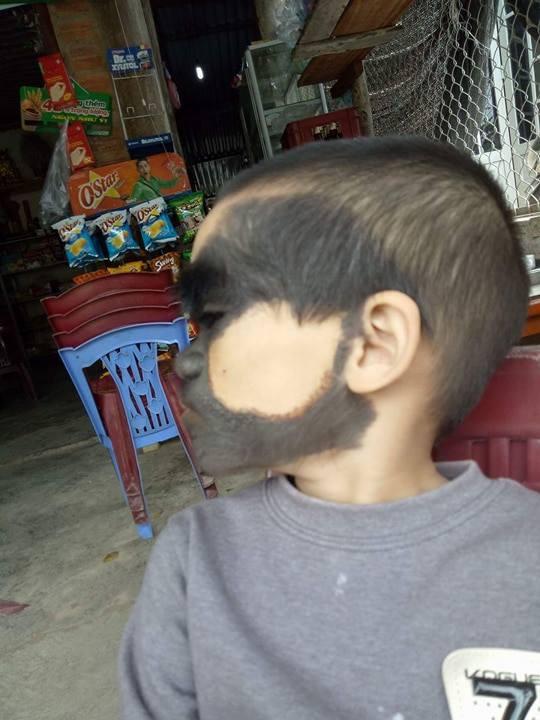 Bé trai 6 tuổi ở Yên Bái có khuôn mặt dị thường, 2 màu trắng đen rõ rệt