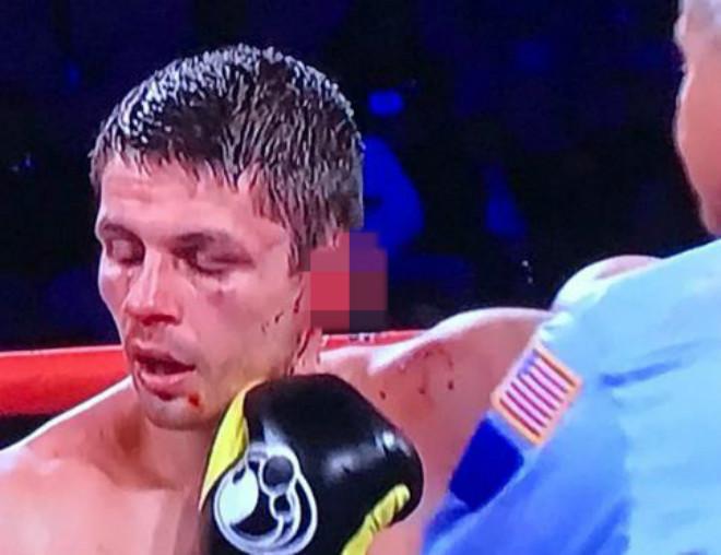 """Boxing: Tranh đấu """"tóe lửa"""", võ sĩ rách tai đổ máu như Holyfield 1"""