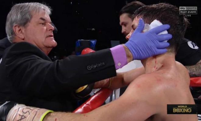 """Boxing: Tranh đấu """"tóe lửa"""", võ sĩ rách tai đổ máu như Holyfield 2"""