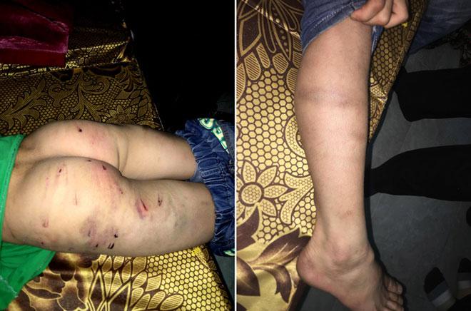 """Bố đánh con trai 9 tuổi chi chít sẹo: """"Tôi không lấy vợ 2 vì còn con cái"""""""