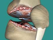 Tin tức sức khỏe - Viêm đau xương khớp thoái hóa: Hàng ngàn bệnh nhân đón tin vui nhờ mẹo nhỏ!
