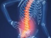 Tin tức sức khỏe - Đẩy lùi cơn đau nhức do thoái hóa đốt sống chỉ sau 2 tháng
