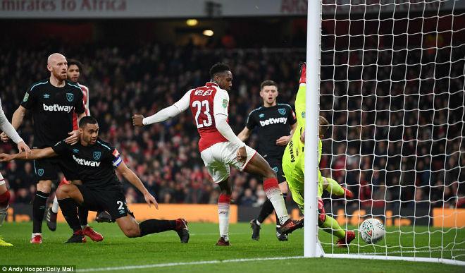 Vào bán kết cúp Liên đoàn, Arsenal nhận tin dữ đấu Liverpool 1
