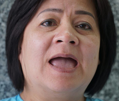 """Nữ Việt kiều Mỹ: """"Hàm răng của tôi đáng giá hơn chiếc xe hơi"""" - 2"""
