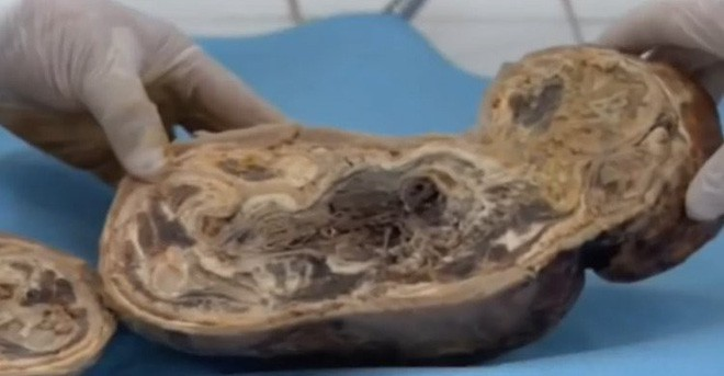 Cả bệnh viện sốc nặng khi mổ đẻ cho người phụ nữ mang thai suốt 46 năm - 2