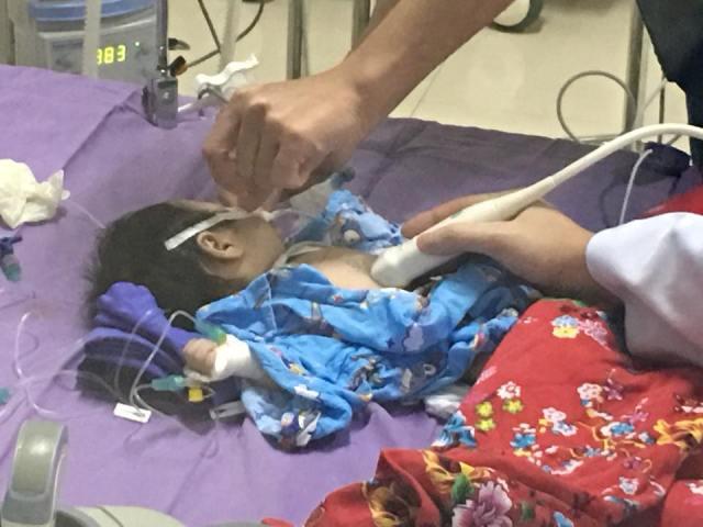 Bé trai 45 ngày tuổi suýt chết vì ho kéo dài không được điều trị - 1