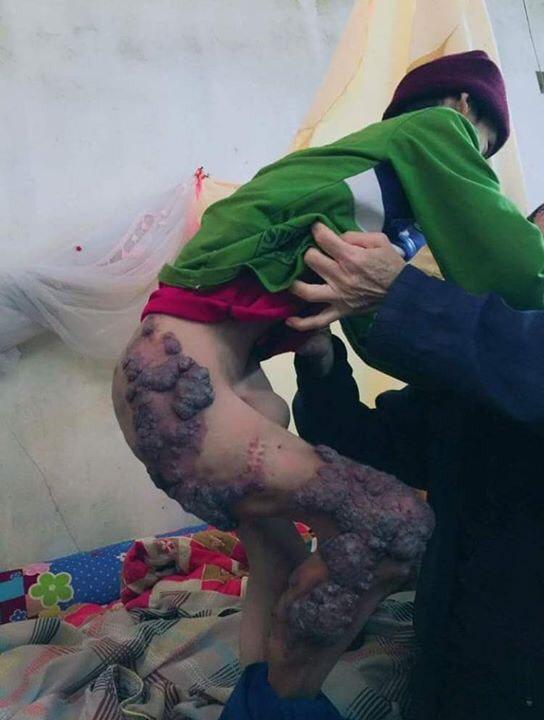 Cuộc đời nghiệt ngã của đứa trẻ có mẹ bị cha sát hại