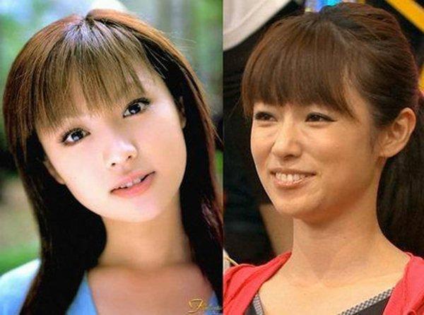 Sau nghi vấn lạm dụng phẫu thuật, mỹ nữ Nhật tái xuất đẹp như mộng - 1