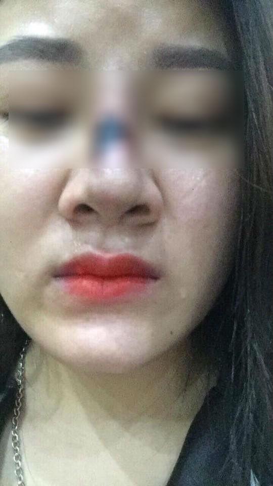 Dân mạng khiếp vía vụ cô gái Sài Gòn có mũi sưng đen vì tiêm chất làm đầy - 3