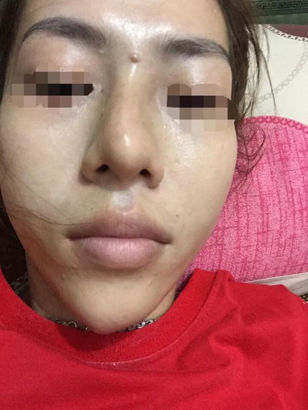 Dân mạng khiếp vía vụ cô gái Sài Gòn có mũi sưng đen vì tiêm chất làm đầy - 6