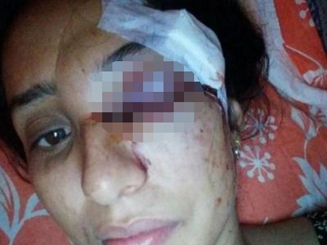 Gã chồng trăng hoa đánh vợ đến sảy thai, mù mắt vì không được mua ôtô - 1