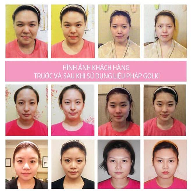 """Golki – liệu pháp làm đẹp bằng tay đang gây """"sốt"""" ngành chăm sóc sắc đẹp tại Việt Nam - 2"""