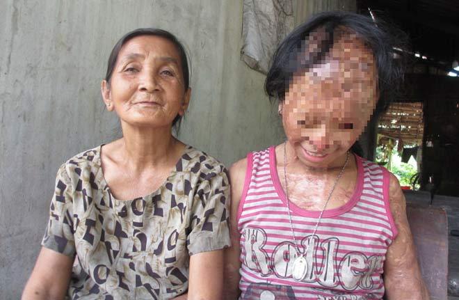Nghẹn lòng ước mơ của bé gái bị tình địch của mẹ tạt a-xít mù hai mắt - 5