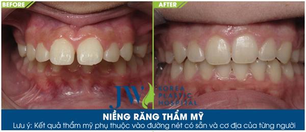 Niềng răng gián tiếp: rút ngắn thời gian lên đời nhan sắc - 3
