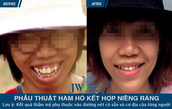 Niềng răng gián tiếp: rút ngắn thời gian lên đời nhan sắc - 5