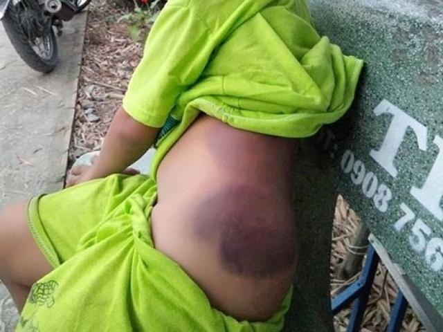 Bé trai lớp 1 khuyết tật nghi bị cô giáo đánh bầm tím người
