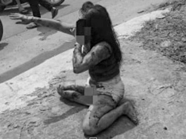 Nữ nhân viên quán cà phê chòi nghi bị khách đánh dã man